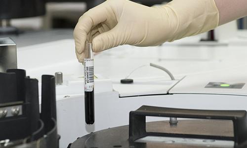 Adding a test tube to a centrifuge