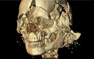 vista en despiece del cráneo