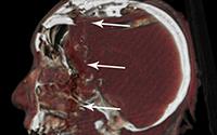 vista lateral, de, cráneo, radiografía