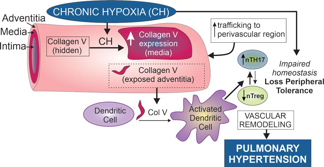 hipertensión pulmonar causada por hipoxia crónica