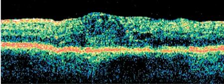 oct imágenes enfermedad diabética del ojo