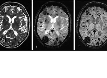 malformaciones cavernosas del cerebro