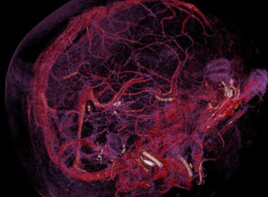 Angio reconstrucción del cerebro