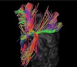 Cerebro de ratón DTI