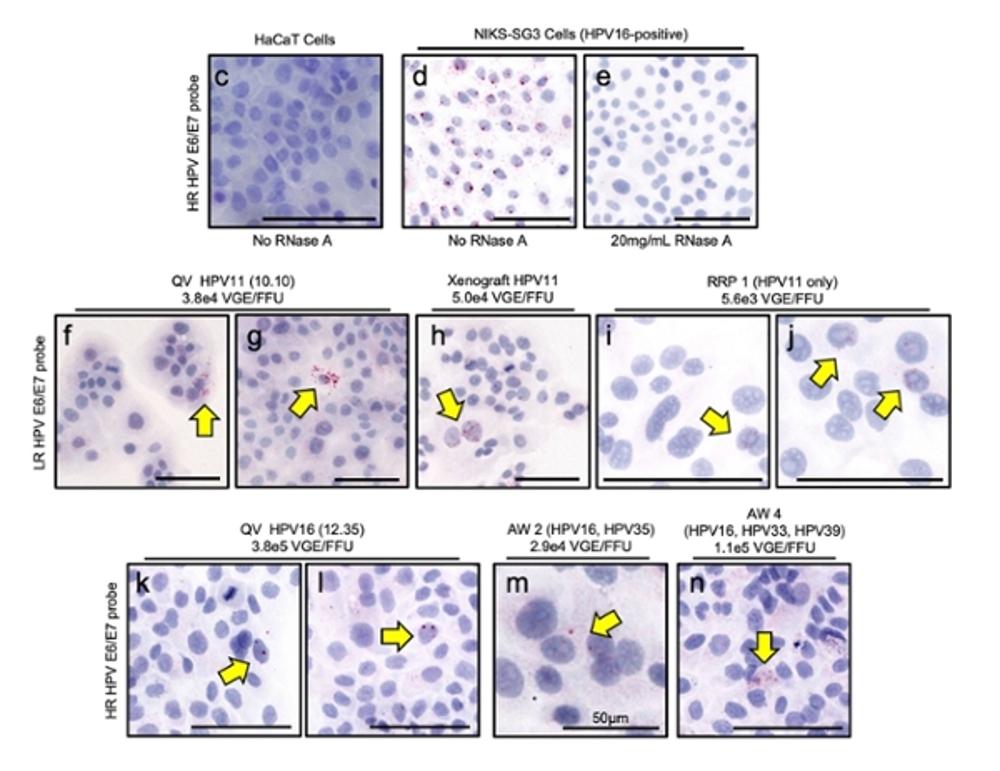 Papel desinfectante Ozbun HPV Figura 4