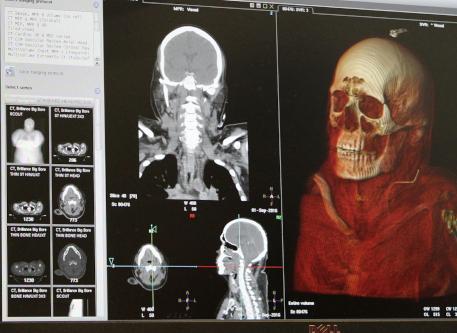 Escaneos de cráneo.